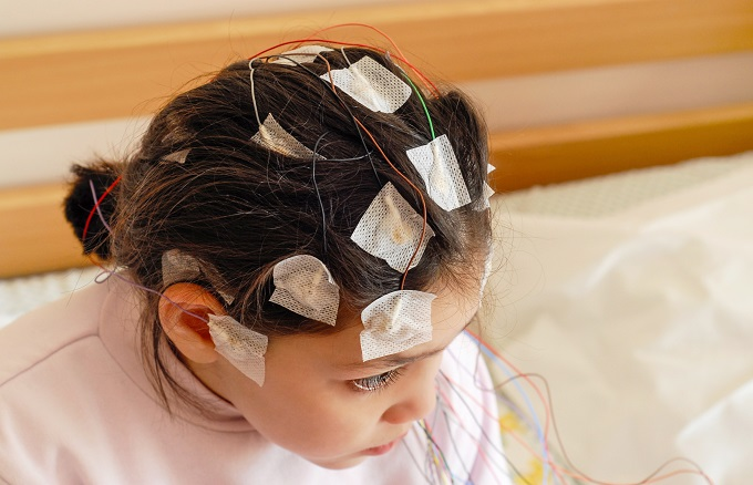 Photo of Navigating epilepsy in school: do we need more training?
